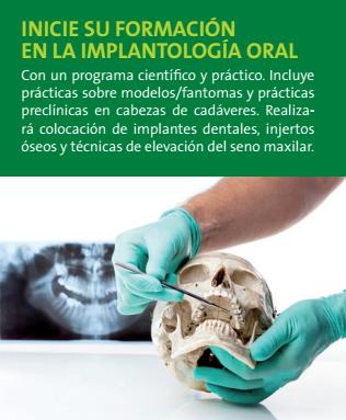 Curso implantologia oral