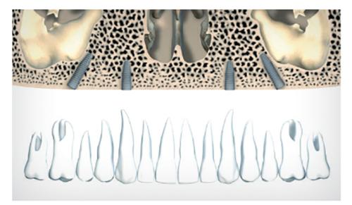 Curso Implantologia Oral Valencia 2015-2016
